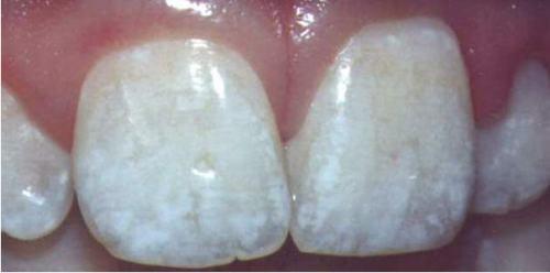 Dentfluorose